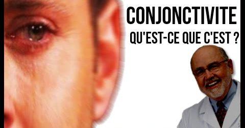 Qu'est ce qu'une conjonctivite ?